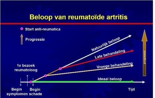 Beloop van reumatoïde artritis