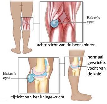 kraakbeenletsel knie symptomen