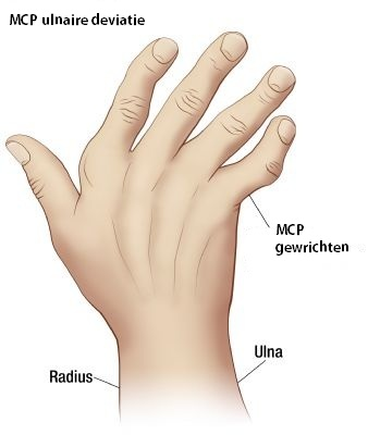 vernauwing bloedvaten handen