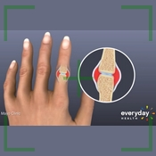 5 Warning signs of rheumathoid Arthritis