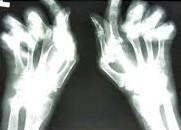 Reuma zichtbaar met nieuwe techniek