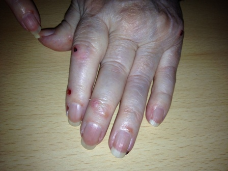 Wist Jij Medisch Reumatoide Artritis Liga Vzw