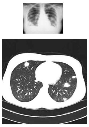 Vragen Aan De Reumatoloog Deel 2 Reumato 239 De Artritis