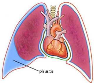 longvliesontsteking symptomen
