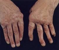 psoriasis gewrichten