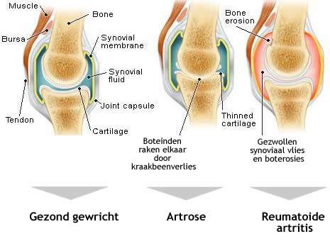 artrose nekwervels symptomen